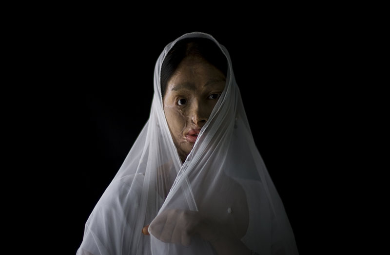 Violencia de género en Pakistán, de Emilio Morenatti.